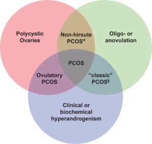 PCOD treatment